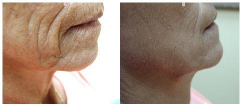 terapia dracula in dermatologie